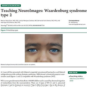 Neurology Waardenburg.jpg