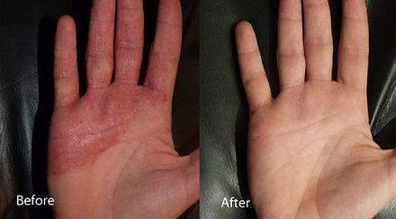 Aurora Organic Spray Tans Red Light Therapy