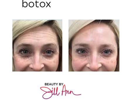 Botox Basics