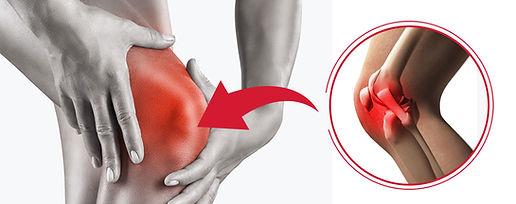 LCL-Injury-min.jpg