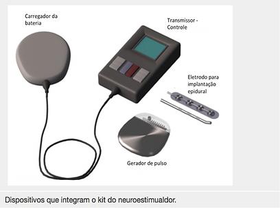 Neuroestimulador.png