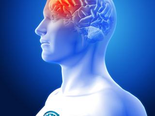 Tratamento Neurocirúrgico dos Acidentes  Vasculares Cerebrais