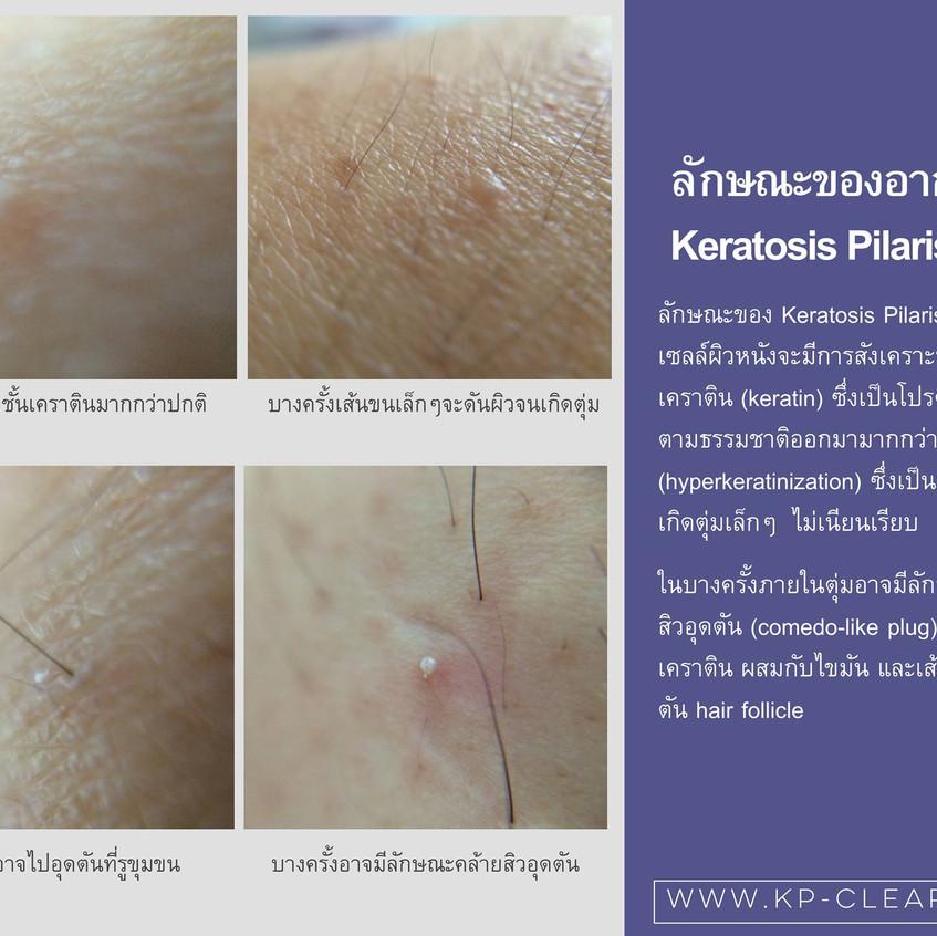 ข้อมูลลักษณะอาการ keratosis pilaris