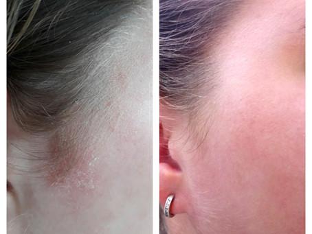 Prachtig resultaat met IK Skin Perfection