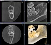 名東区 歯医者 おすすめ 評判 人気 無痛 子供 ホワイトニング 顎関節 入れ歯 上手い 朝日レントゲン CT 画像