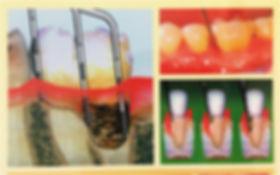 名東区 歯医者 おすすめ 評判 人気 無痛 子供 ホワイトニング 虫歯 病気 歯周病