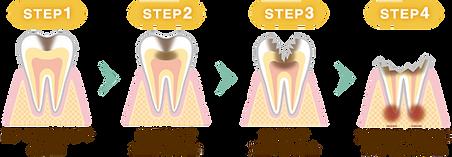 名東区 歯医者 おすすめ 評判 人気 無痛 子供 ホワイトニング 顎関節 入れ歯 上手い 虫歯