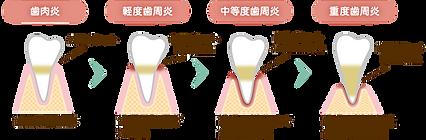 名東区 歯医者 おすすめ 評判 人気 無痛 子供 ホワイトニング 顎関節 入れ歯 上手い 歯周病 抜かない うまい 専門医