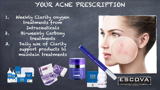 Your acne prescription