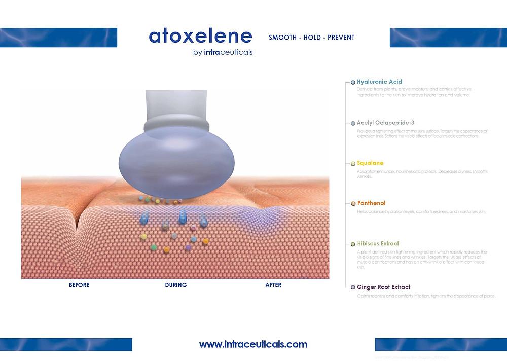 Atoxelene Infusion Treatment