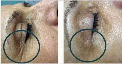 Before (on left) an Infusion Treatment. And after (on right) an Infusion Treatment