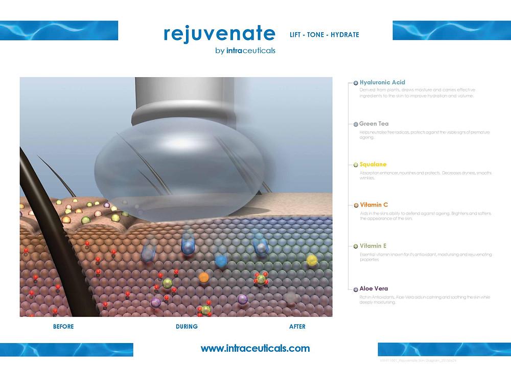 Rejuvenate Infusion Treatment