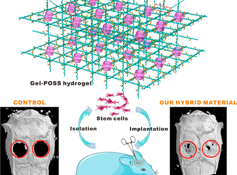 Long-Term Bone Regeneration Enabled by a Polyhedral Oligomeric Silsesquioxane (POSS)-Enhanced Biodeg