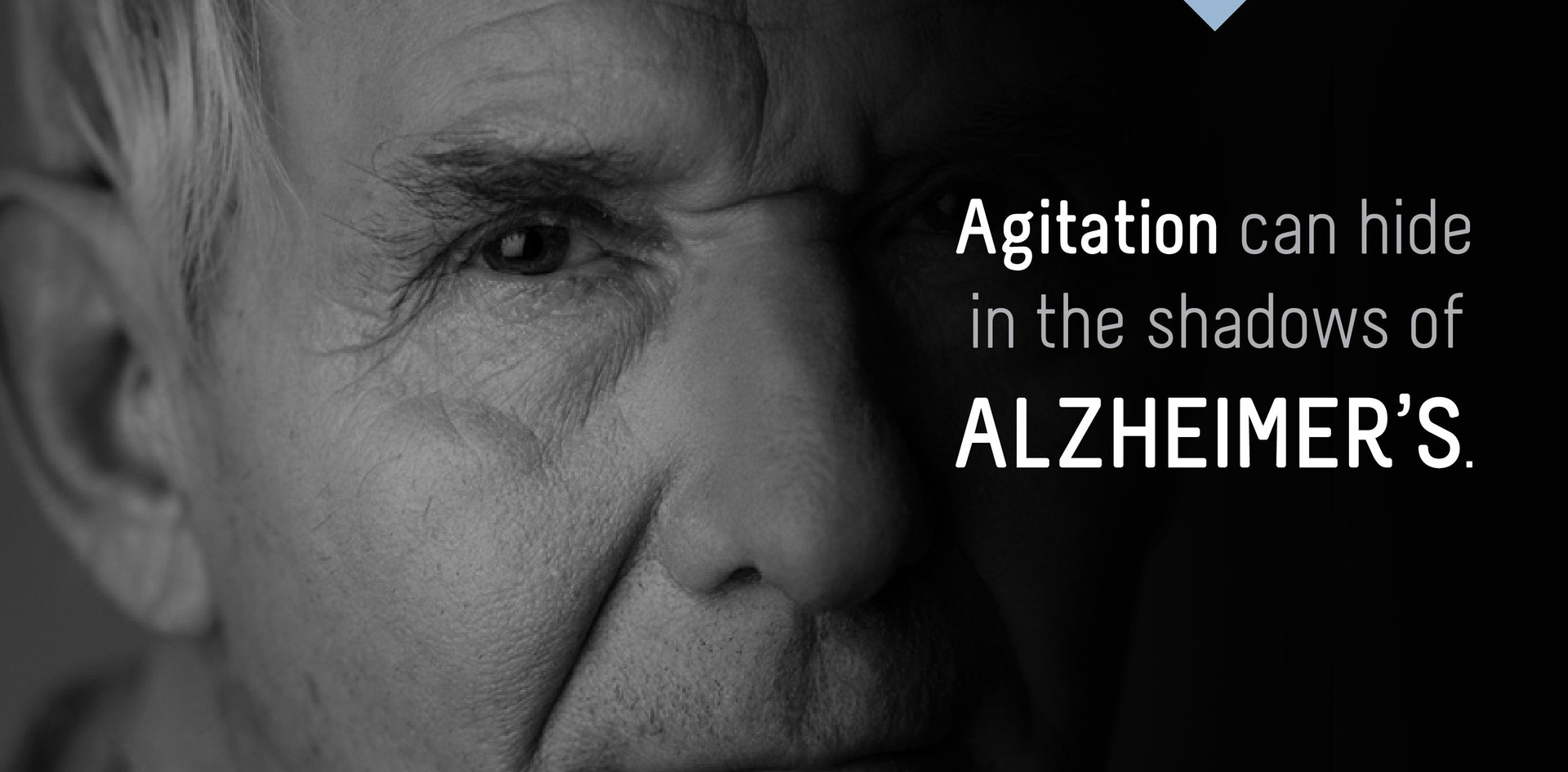 Alzheimer's Disease & Aggitation
