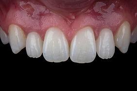 Dr Chris Barwacz - UI - #10 implant, #7 tooth borne.jpg
