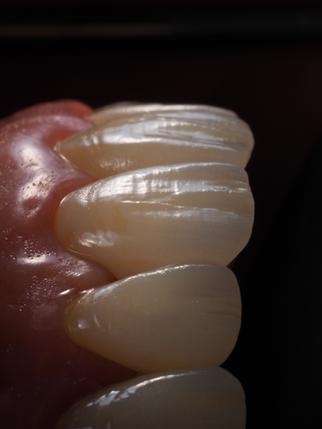 Dr Walle Renee - MUSC - Upper zirconia crowns.png