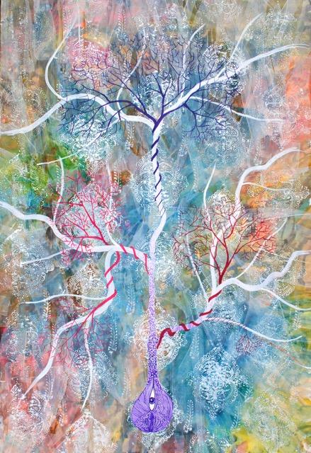 Lipid branches52x76.jpg