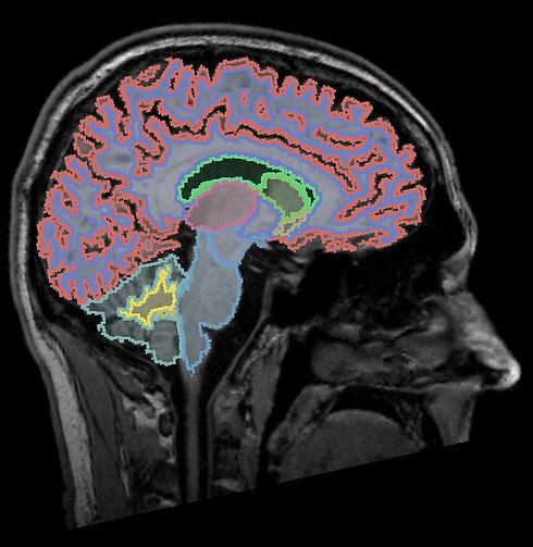 BrainSeg.png