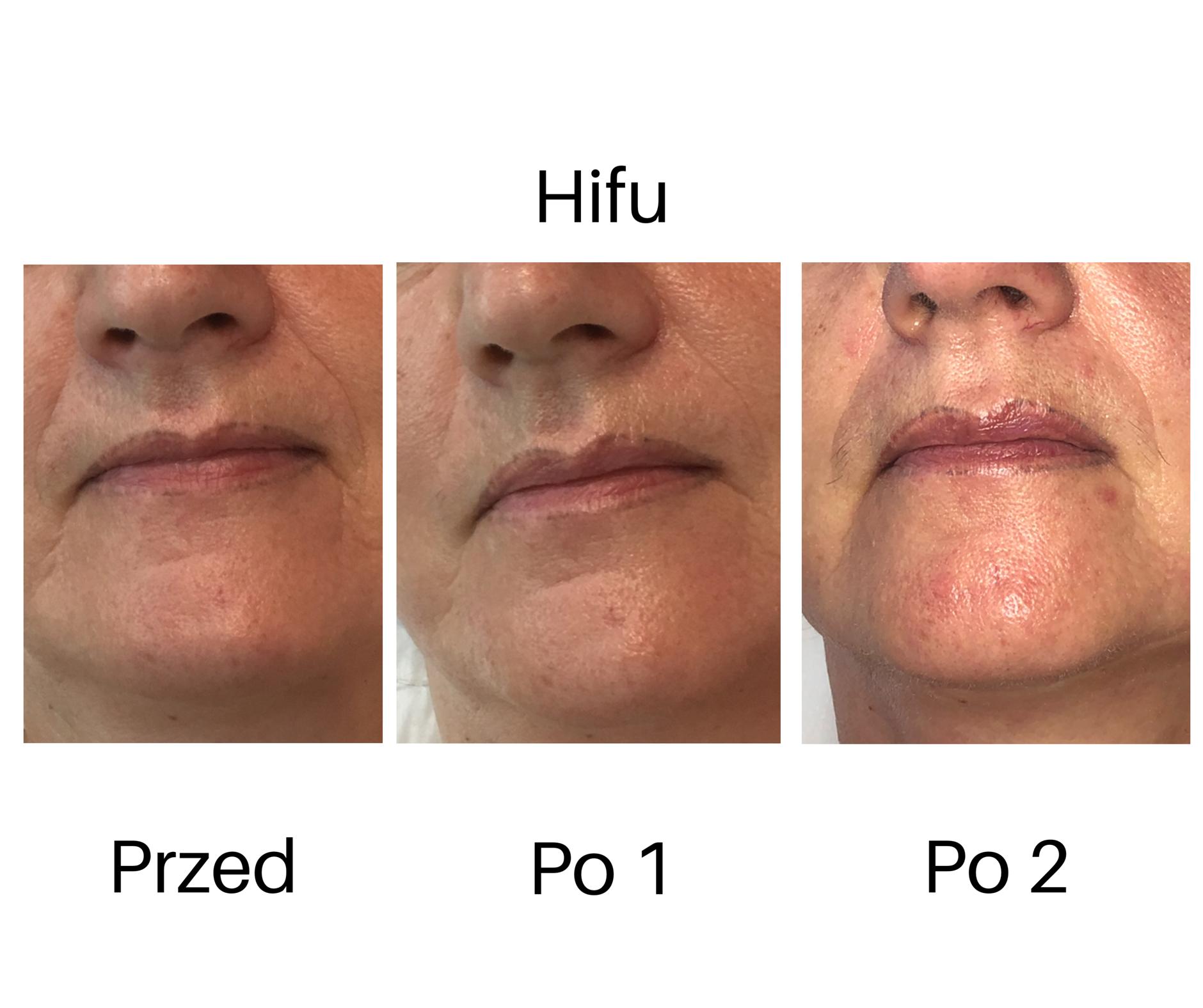 ifu lifting twarzy poprawa ust Kobieteri