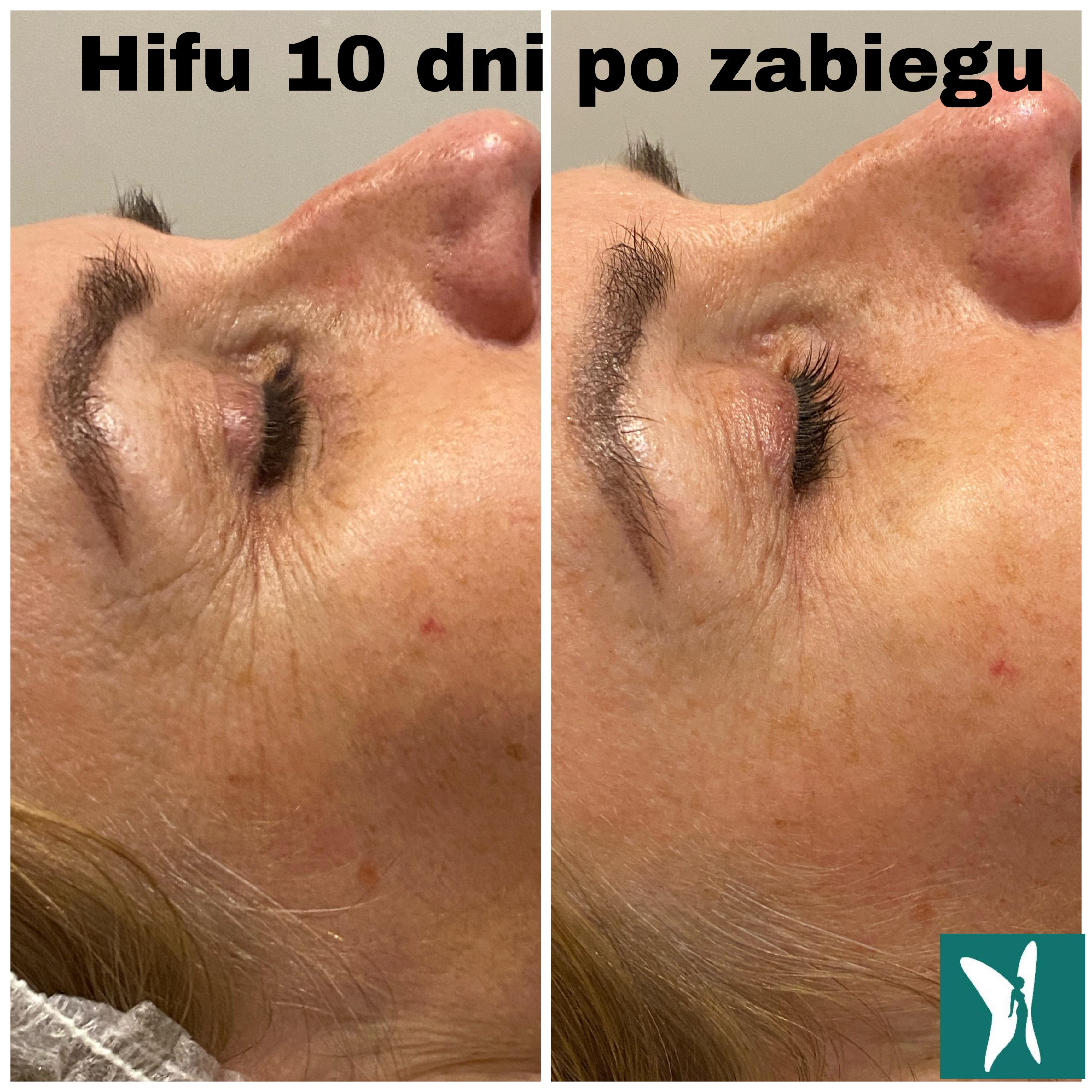 hifu opadajaca powieka kurze łapki zmarszczki mimiczne kobieteria