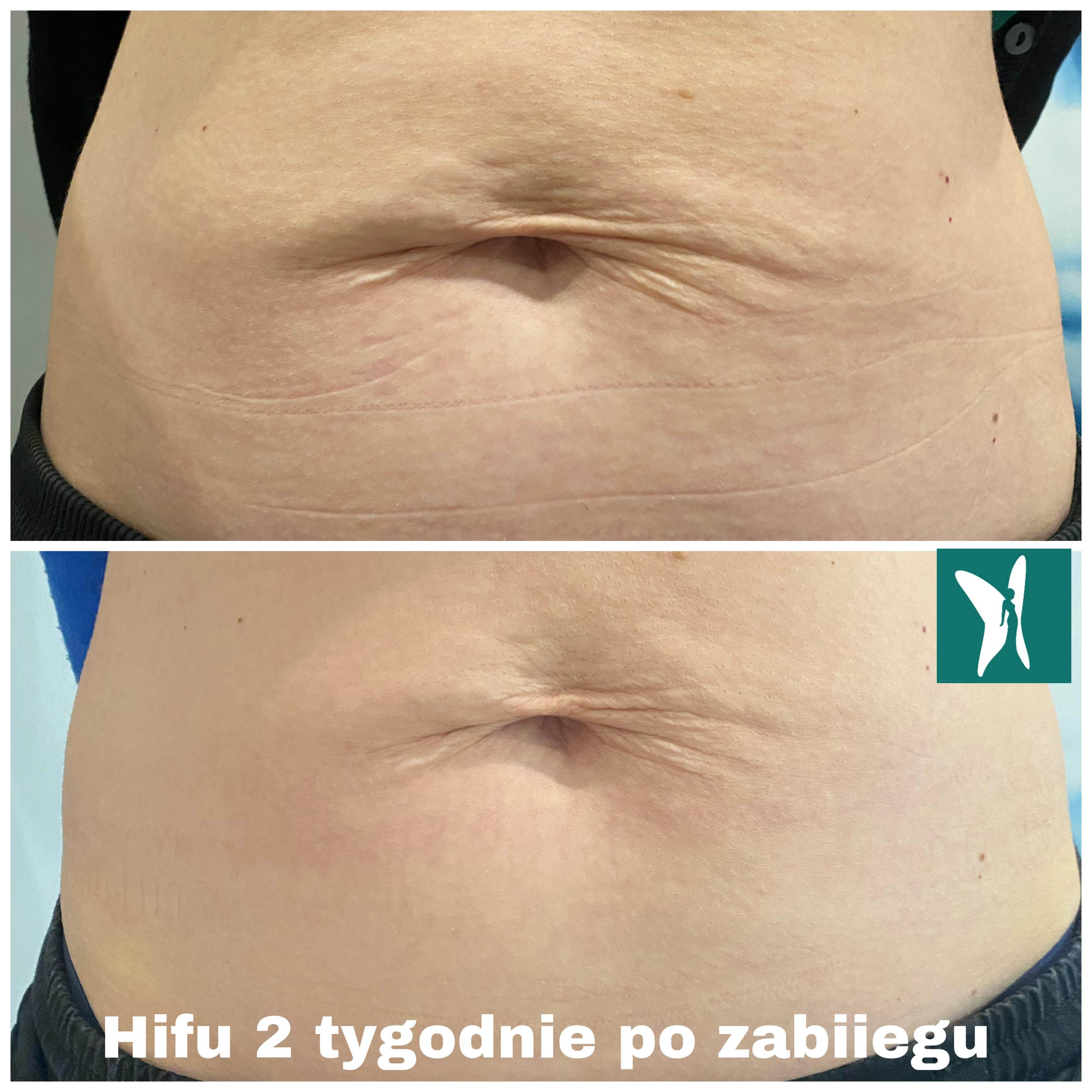hifu brzuch po ciąży kobieteria