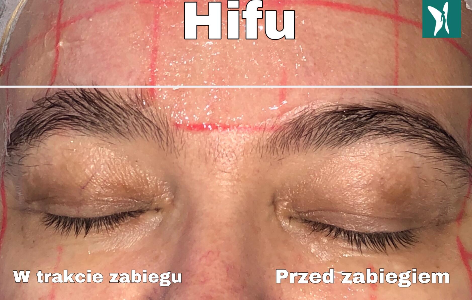 ifu okolice oka w trakcie zabiegu Kobiet