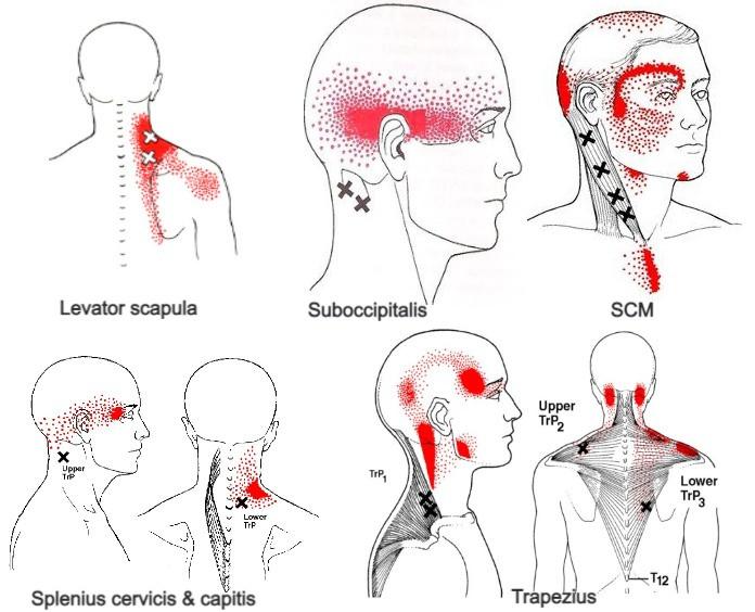 Her ser du flere forskjellige triggerpunkter i nakken som kan produsere hodepine