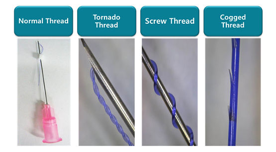 3 Types of PDO Threads in Thread Lifting