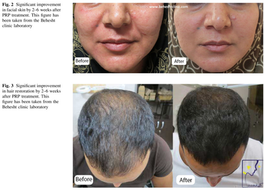 The 6 Indications of Platelet-Rich Plasma in Aesthetic and Regenerative Medicine