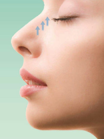 The Perils of Non-surgical Rhinoplasty : A Safer Approach Needed? -A