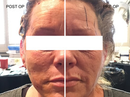 <Insights> Non-Surgical Brow Lifting using Cogged Minimally Invasive Non-Surgical Threads