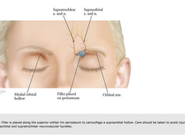 Filler Injection for Sunken Upper Eyelids: The 5 Takeaways