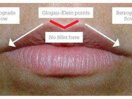 <Exclusive Video> Lip Enhancement Techniques Using Soft & Reversible Hyaluronic Acid Fille