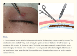 Treatment of Suture-related Complications of Buried-suture Double-eyelid Blepharoplasty in Asians