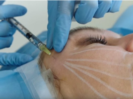 'Threads Of Life' Facelift Is Horrifying, Yet Fascinating (Video)