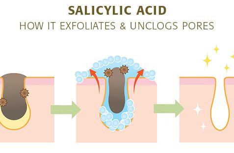Ingredient Spotlight : Salicylic Acid
