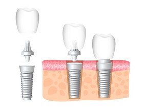 FAQs of Dental Implants
