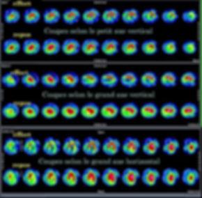 scintigraphie cardiaque-1.jpg