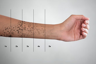 Fading a tattoo to remove