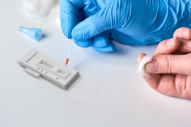 COVID-19 Antibody Testing-Self Pay