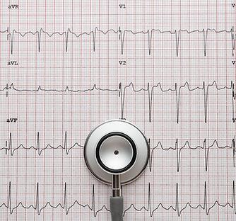 Stethoscope on the ECG. medical symbolic
