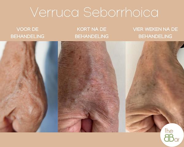 Verruca Seborrhoica (1).png