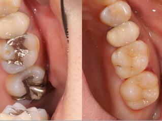 白い歯で輝く笑顔に