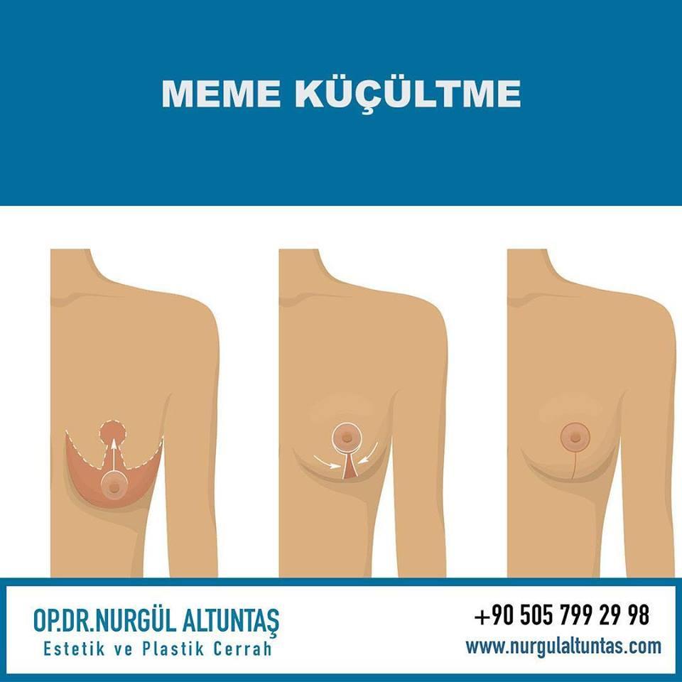 meme küçültme kocaeli -dr nurgula altuntas
