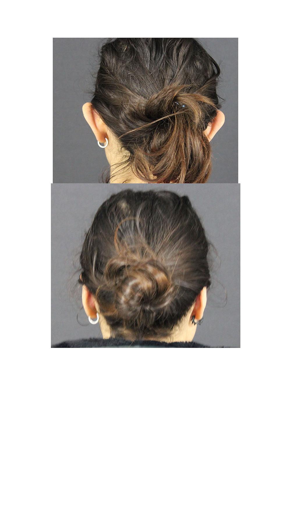 kepçe kulak onarımı