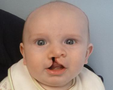 yarık dudak damak onarımı