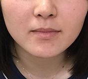 顎before.jpg