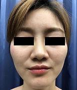頬ヒアルロン酸 施術前127.jpg