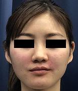 頬ヒアルロン酸 施術後 127.jpg