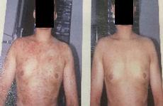 アトピー性皮膚炎・白斑治療